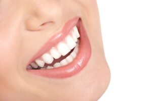 Replacing Your Porcelain Veneers