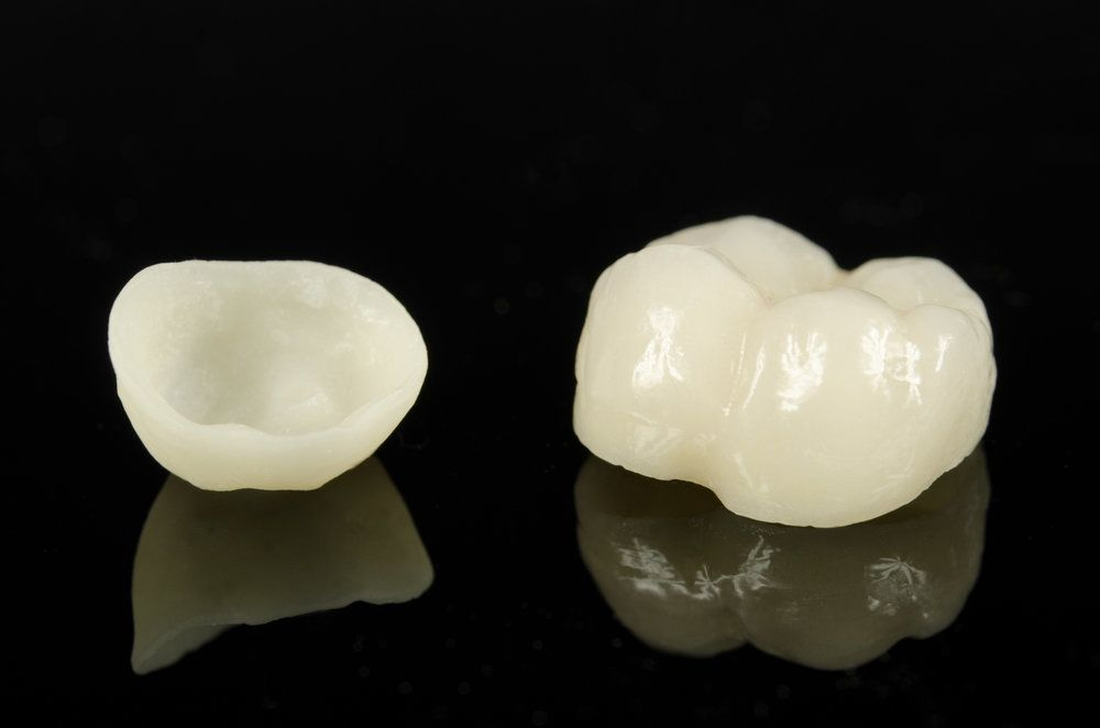 What Are the Causes of Damaged Fillings and Crowns?