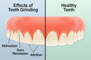 Prevent Teeth Grinding and Damage to Your Teeth